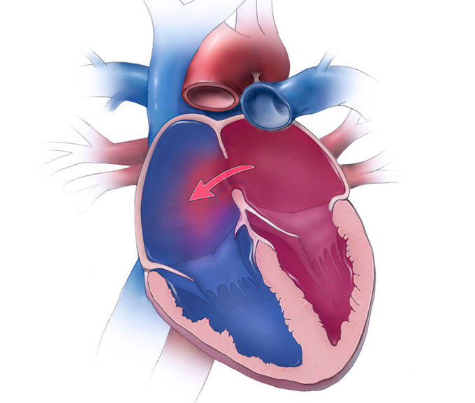 Atrial septal defects dr Alberto Albanese Consultant Cardiac Surgeon International Heart Clinic