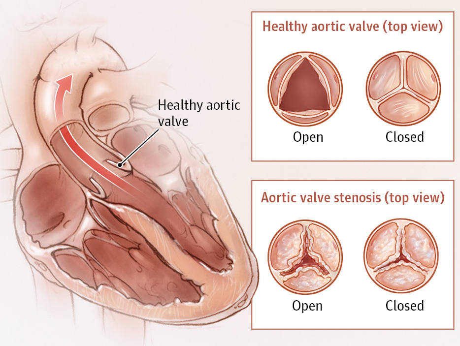 Aortic Valve disease dr Alberto Albanese Consultant Cardiac Surgeon International Heart Clinic