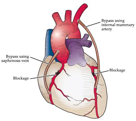 Coronary artery disease (blocked arteries) dr Alberto Albanese Consultant Cardiac Surgeon International Heart Clinic