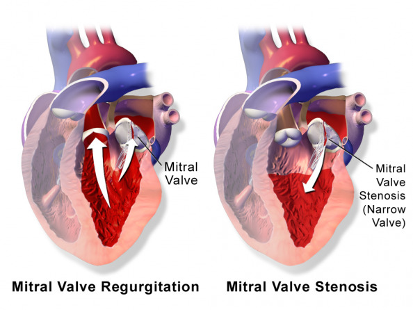 Mitral Valve Disease dr Alberto Albanese Consultant Cardiac Surgeon International Heart Clinic