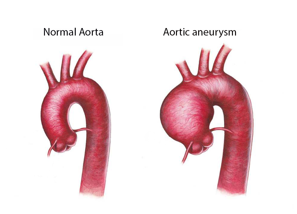 Aortic Aneurysm repair dr Alberto Albanese Consultant Cardiac Surgeon International Heart Clinic