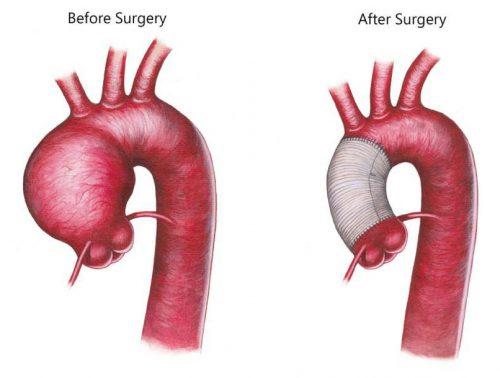 Aortic Aneurysm repair dr Alberto Albanese Consultant Cardiac Surgeon International Heart Clinic